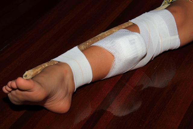 splinting the bitten limb to prevent movement