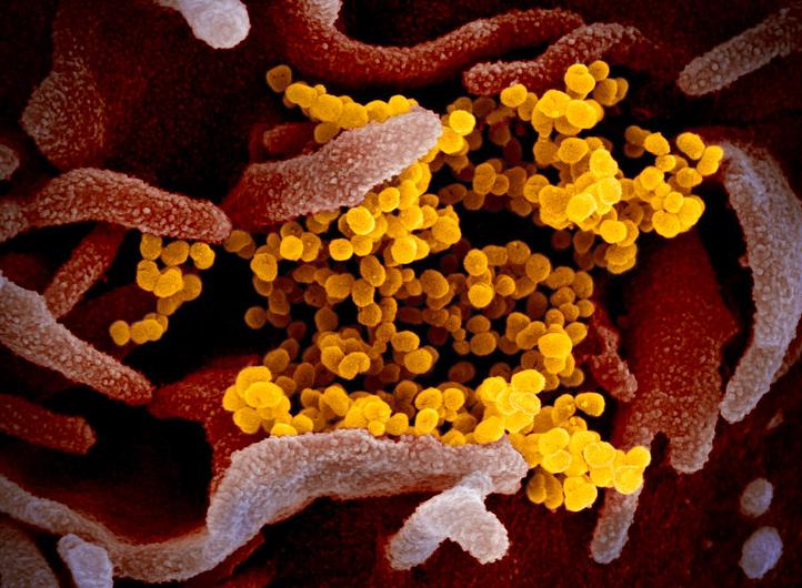 COVID-19 virus (SARS-CoV-2)